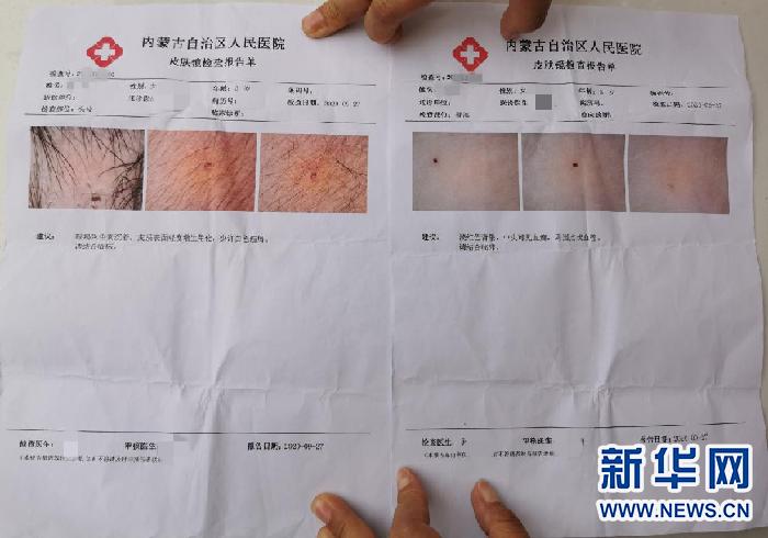 一名身上有不明针眼的孩子的检查报告单上,可清晰看到针眼。新华网 杨腾格尔摄
